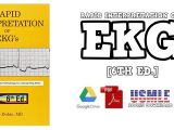 Rapid Interpretation of EKG's 6th Edition PDF