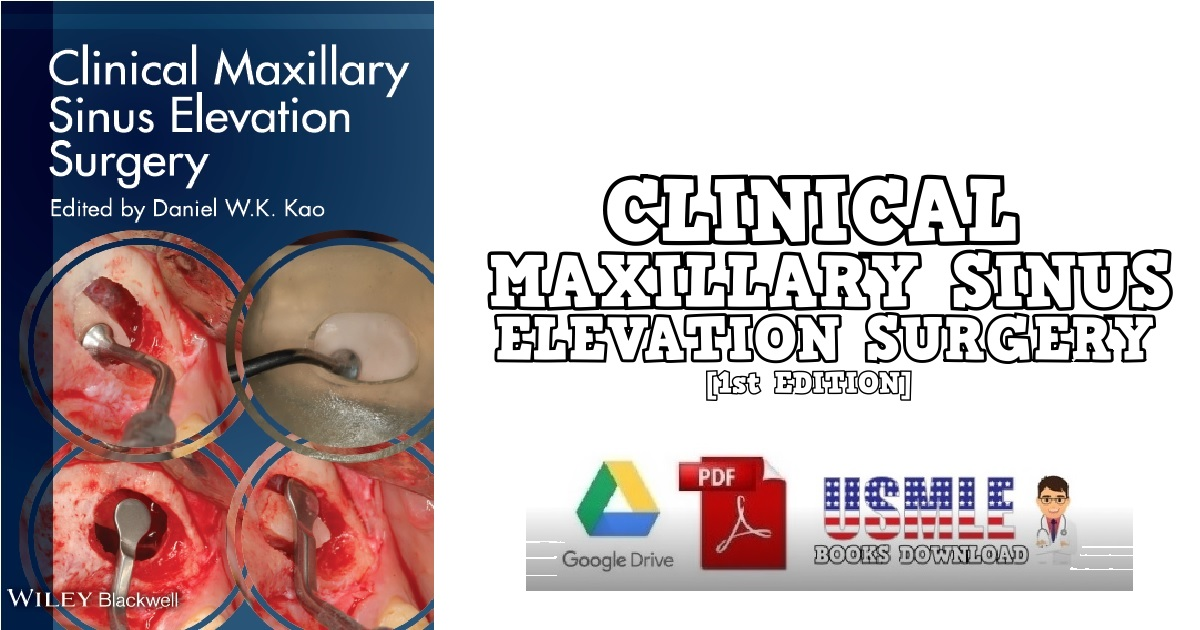 Clinical Maxillary Sinus Elevation Surgery 1st Edition PDF Free Download