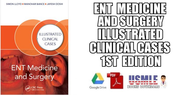 ENT Medicine and Surgery: Illustrated Clinical Cases 1st Edition PDF