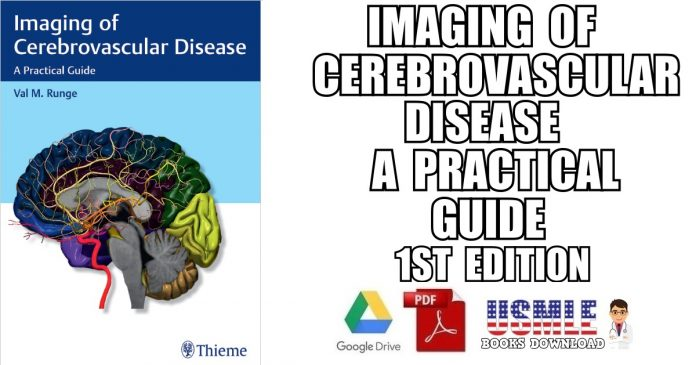 Imaging of Cerebrovascular Disease: A Practical Guide 1st Edition PDF