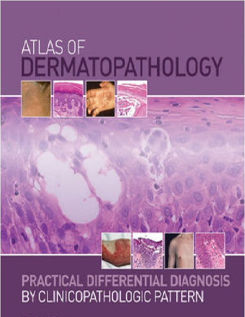 Atlas of Dermatopathology: Practical Differential Diagnosis PDF